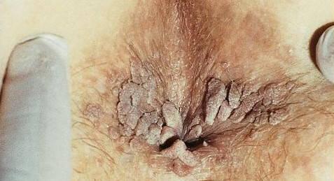 negi genitale la bărbații din anus virusul papiloma poate fi vindecat
