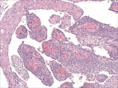 Squamous papilloma in tongue, Papillary urothelial hyperplasia bladder
