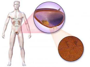 papilomul sânului la ultrasunete ca măsură preventivă