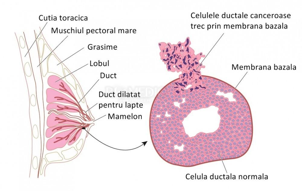papiloame sub glandele mamare