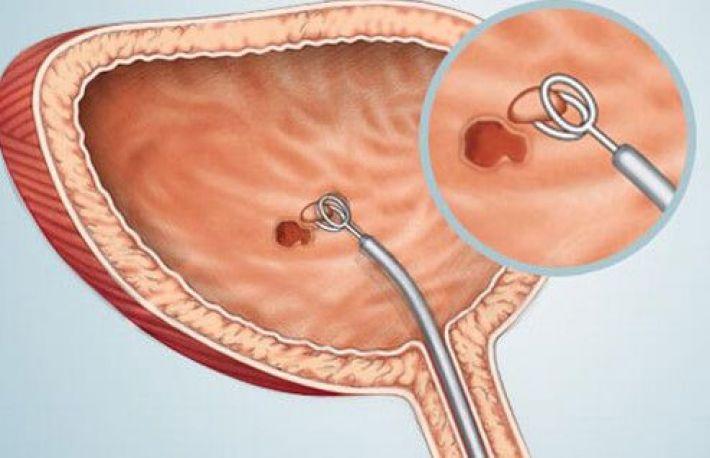 cancerul de vezica urinara la barbati papiloamele vor trece singure