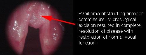 respiratory papillomatosis in newborns sentimente de boală viermii de pământ