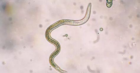 paraziti biologie prevenirea parazitului pentru oameni
