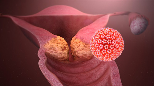 hpv warts face treatment papilloma gingival