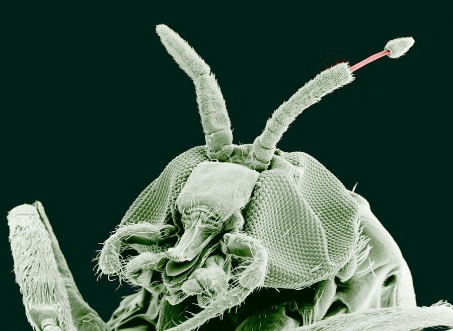 paraziți cu salivă stringentă detoxifiere cu tinctura de propolis