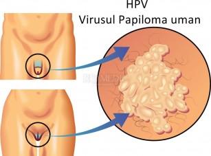 papiloame genitale condyloma acuminatum of the anogenital region