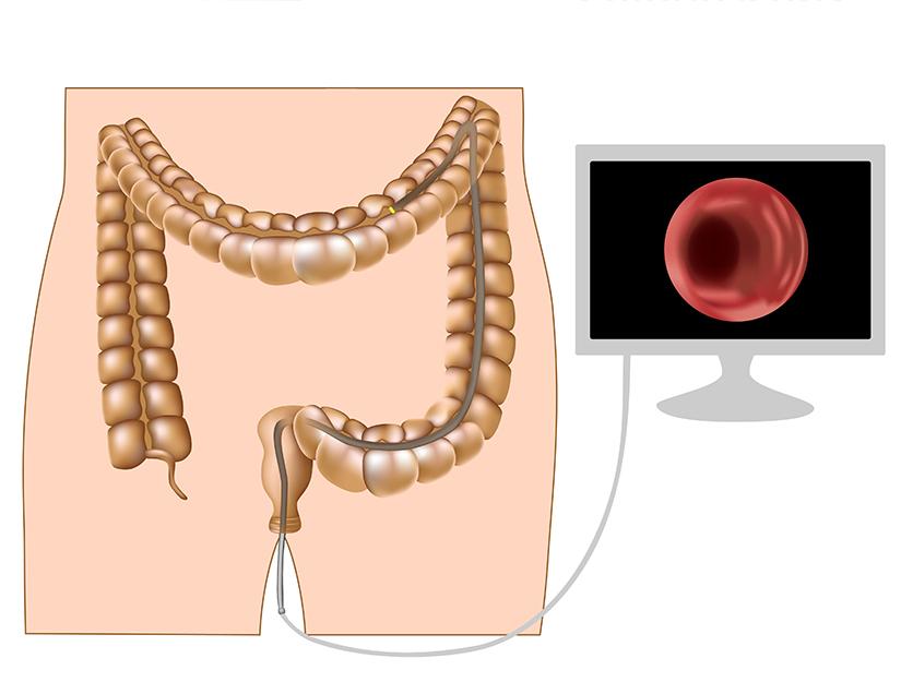neoplasmul malign al apendicelui