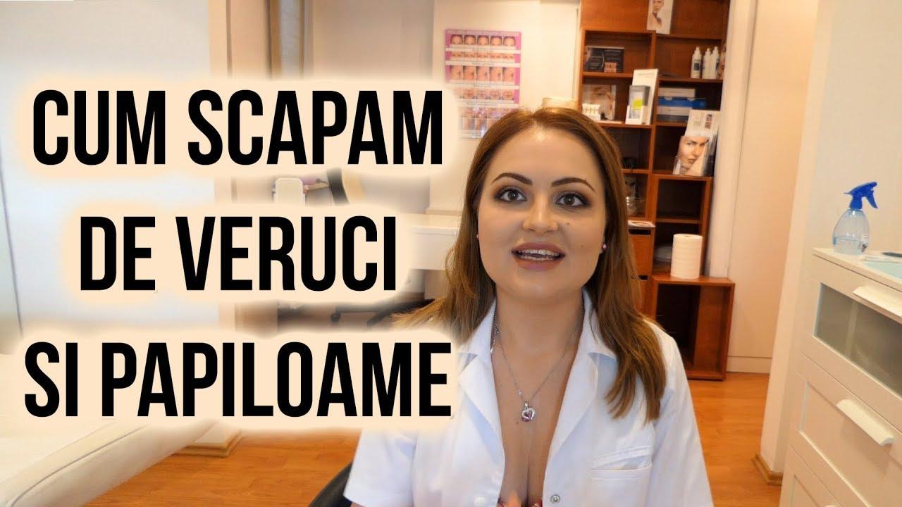 tratament cu papiloame cu keratom can hpv virus cause swollen lymph nodes