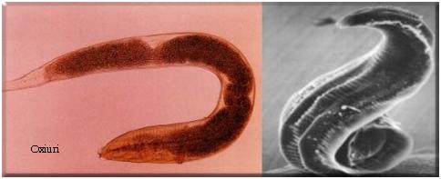 îndepărtarea papilomului în recenziile gâtului cancerul genetic