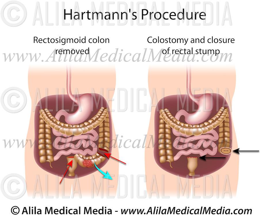 rectal cancer hartmann s procedure