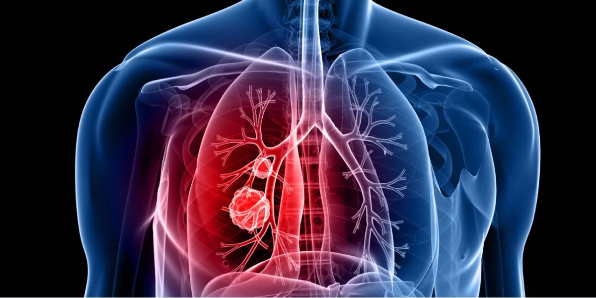 cancerul sistemului nervos ce medicamente să ia de la viermi