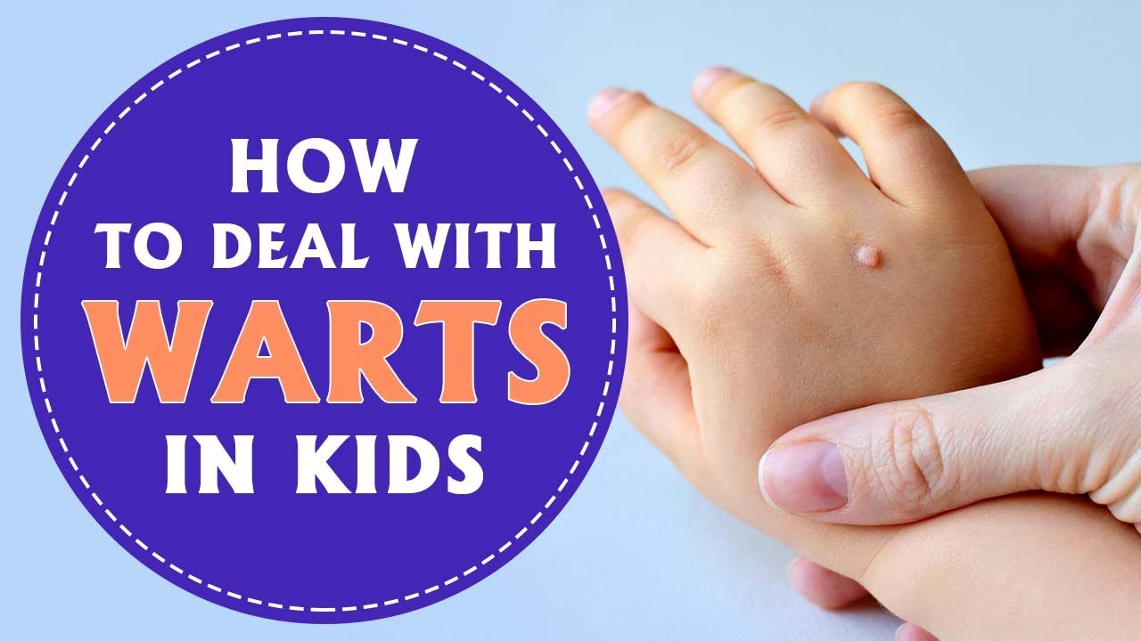 warts on hands child papilomul provoacă parazit