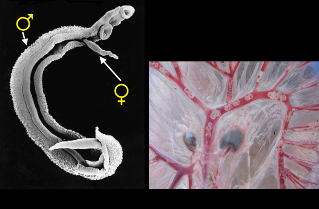 Schistosomiasis worms, Schistosomiasis worms - agroturism-romania.ro