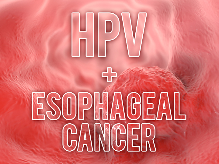 hpv of esophagus