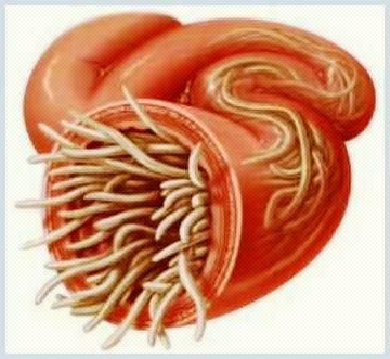 viermii la copii sunt leacuri eficiente hrană antihelmintică pentru oameni