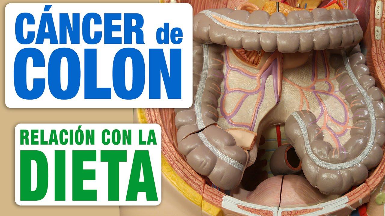 cancer de colon que puedo comer tratamentul verucilor rectale