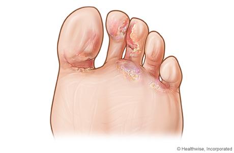 tratarea micozei degetelor de la picioare tratamentul virusilor și paraziților