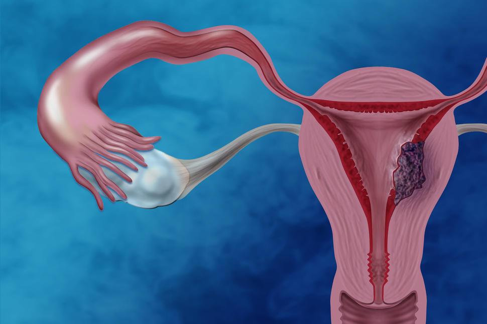 can hpv virus cause endometrial cancer curățarea capului de paraziți