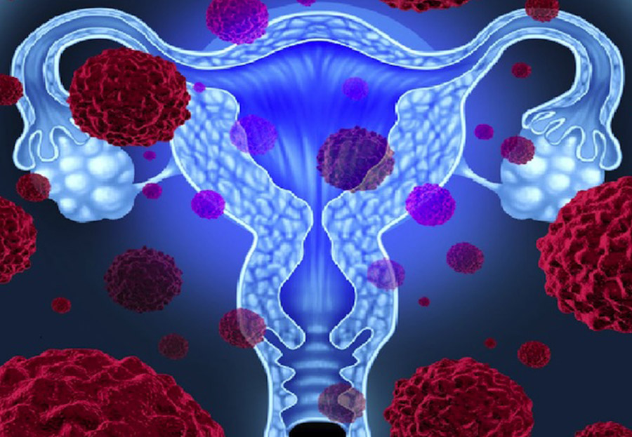 Hpv virus and bladder cancer - parcareotopeni24.ro