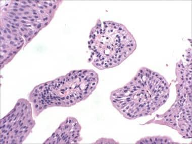 medic îndepărtarea papilomului algoritmul gardului de enterobioză