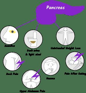 pancreatic cancer weight loss ce inseamna detoxifierea ficatului