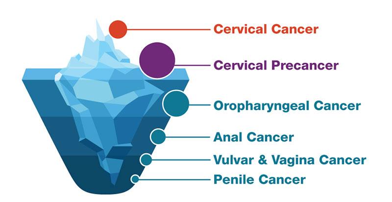 papillomavirus causes the cancer of the clătiți oul de vierme