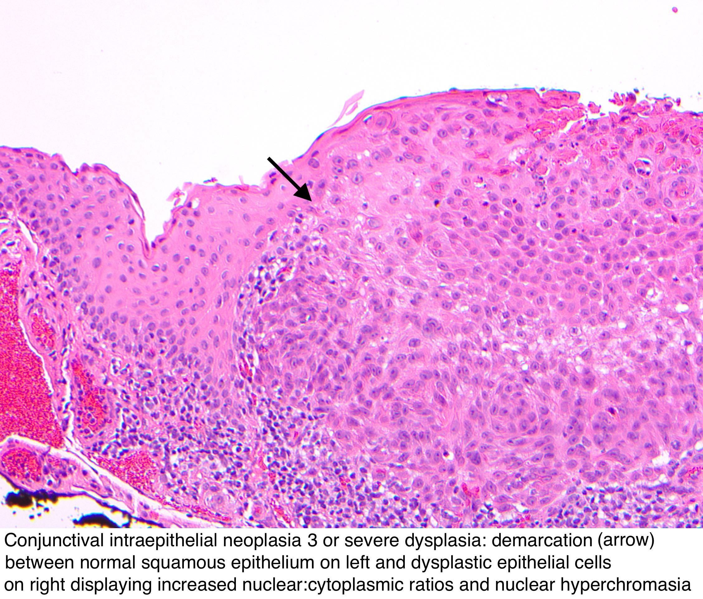 conjunctival squamous papilloma histology conjunctival squamous papilloma histology