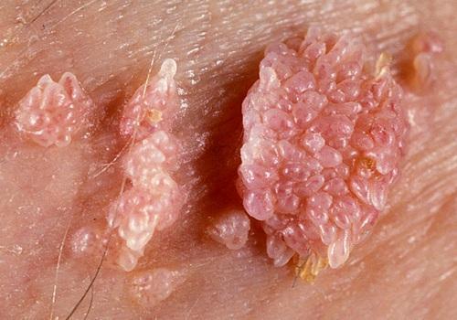 papiloame genitale papilloma squamoso lingua