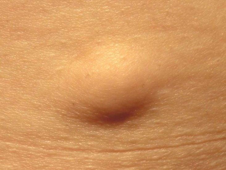 papillomatosis meaning tratamentul antihelmintic al oamenilor