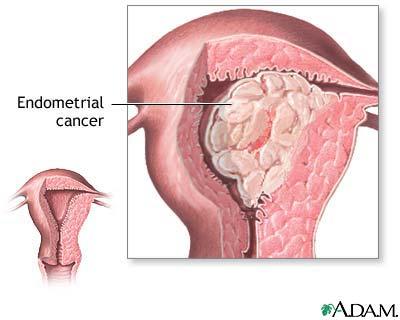 cancer de endometru stadiul 1b hpv virus pregnancy
