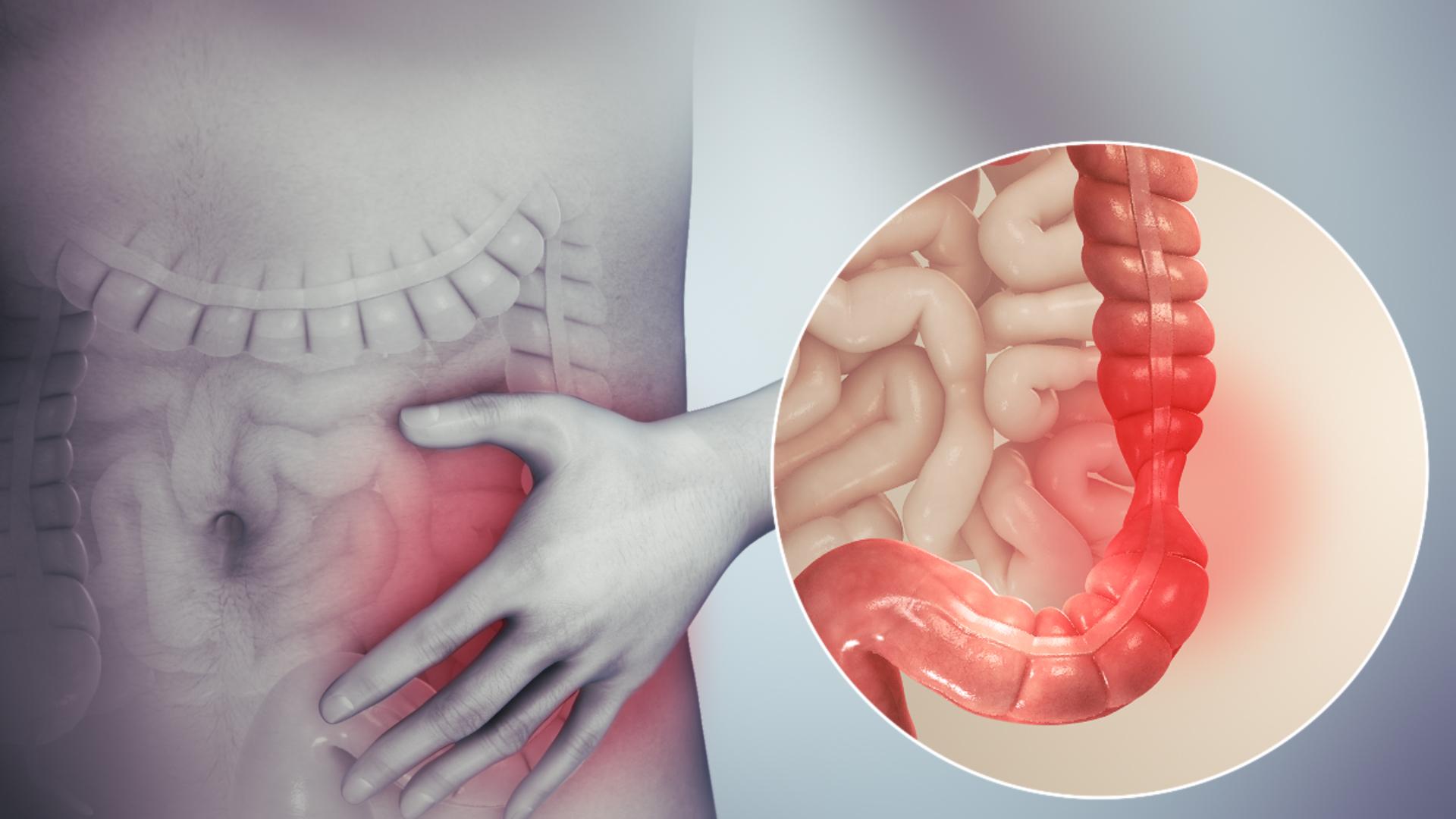 anemie usoara hipocroma tratament cu citrocept parazitar