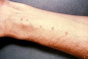 symptoms of a schistosomiasis
