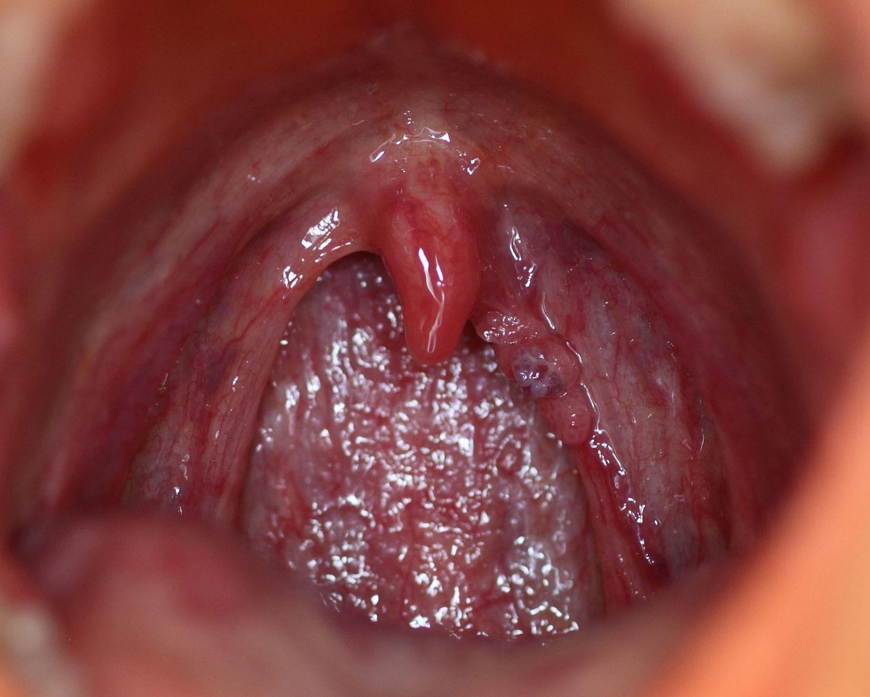 cancer amygdales papillomavirus