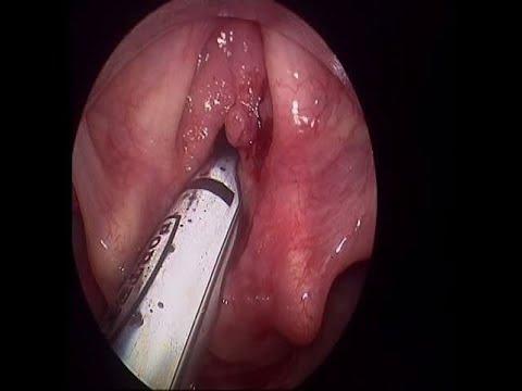 giardia kod pasa lijecenje