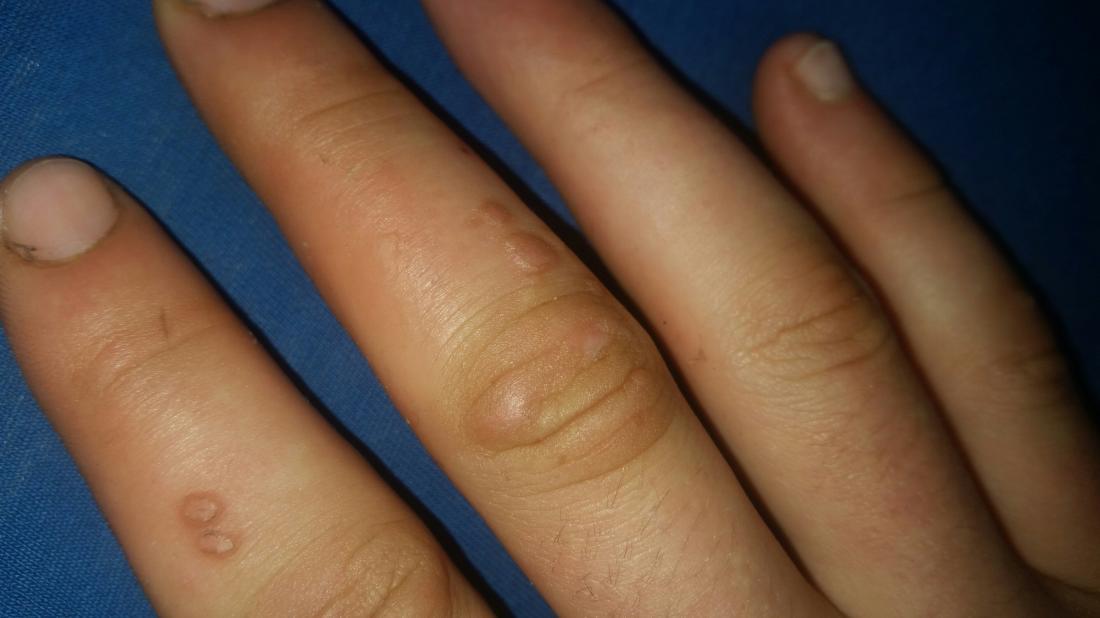 Hpv wart finger Virusi aer conditionat