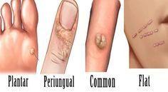 ce este verucile cervicale curs de tratament cu paraziti
