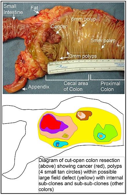 Chist și cancer: simptome, diagnostic, tipuri și metode de tratament