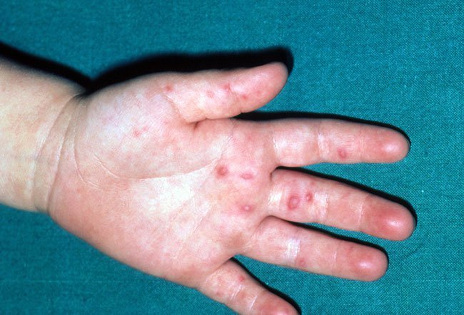 are warts on hands herpes