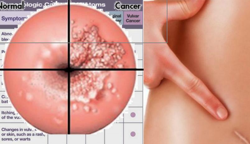papilloma virus kezelese urinary bladder papilloma means
