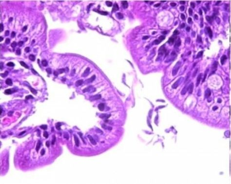 limbrici oxiuri hpv and cancer review