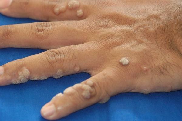 papiloma hirsutoide en hombres tratamiento