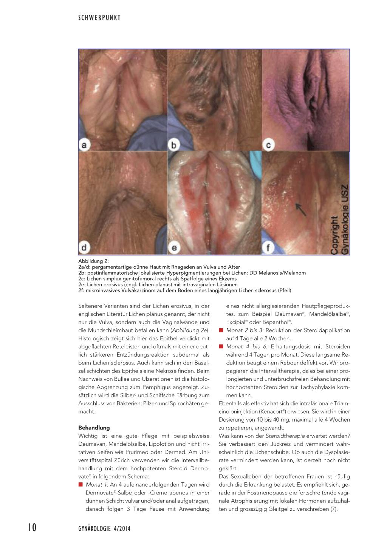 papilloma virus sintomi prurito condyloma acuminata huidarts