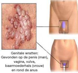 Behandeling hpv baarmoederhals Conisatie operatie, Hpv mannen oorzaak
