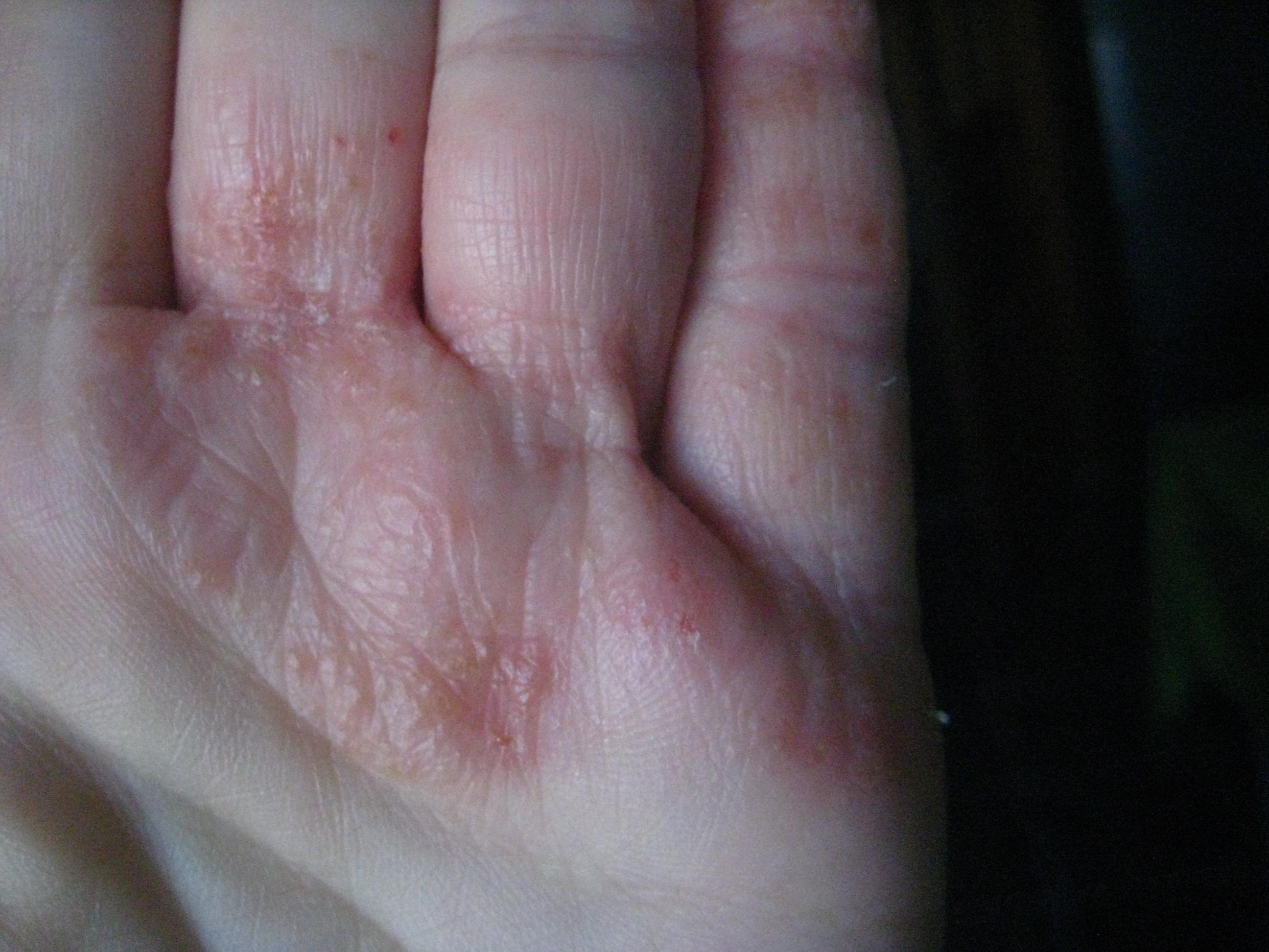 dermatită între degete cum să scapi de viermi cu medicamente