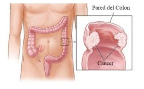 viermi în tratamentul pancreasului