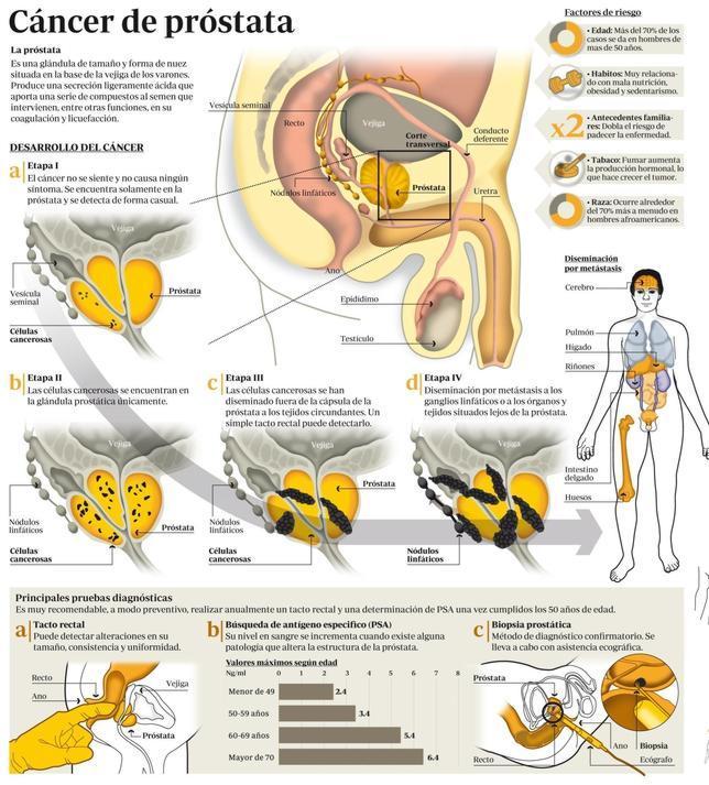 Cancer de prostata avancado tem cura Cancer prostata sintomas avancado