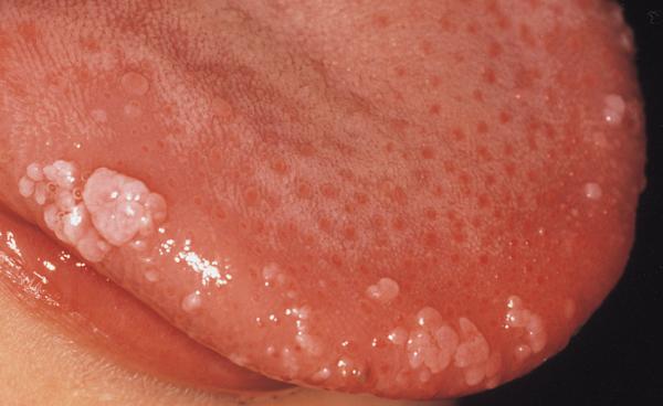 hpv virus lecenje cancer de prostata fase 2