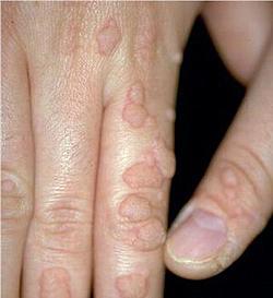 papillomavirus homme traitement