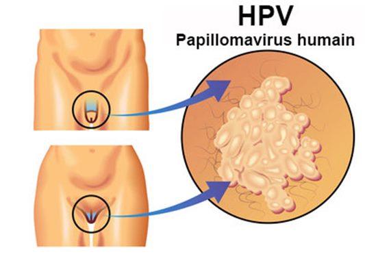 papillomavirus symptomes chez la femme el papiloma se transmite al bebe