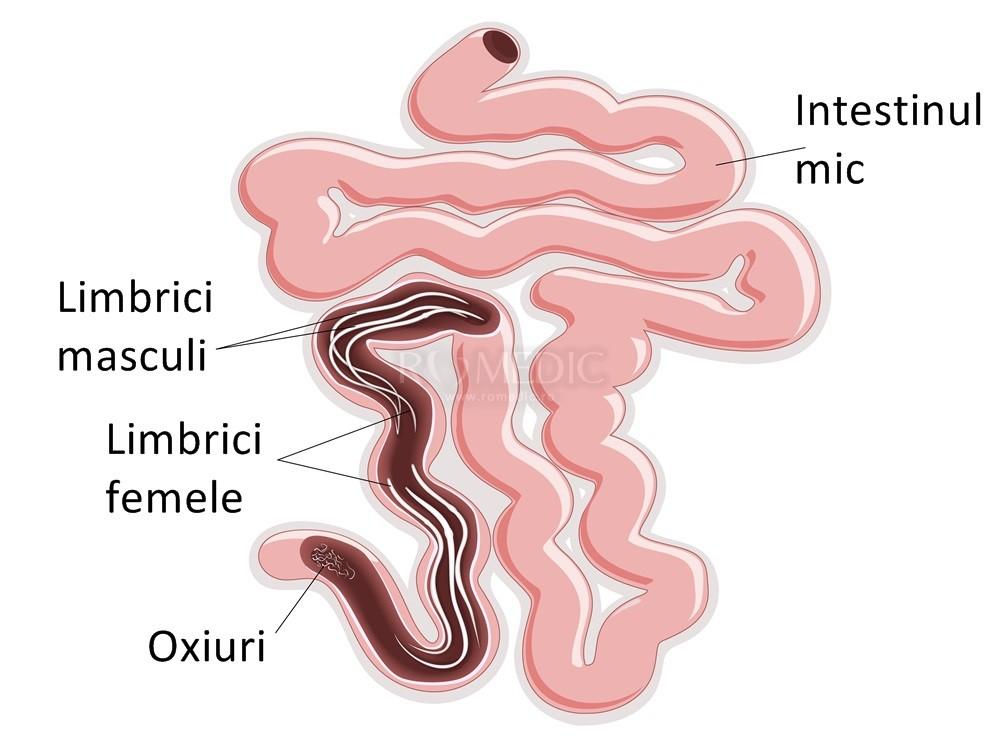 infeccion por oxiuros tratamiento
